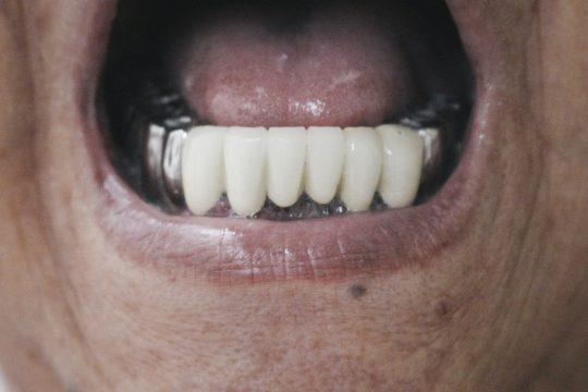 dentist-20160920